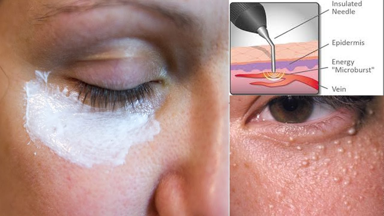 6 Simple Ways To Get Rid Of Milia Under Your Eyes