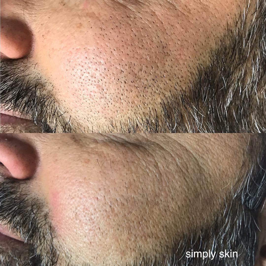 Ingrown facial hairs removal