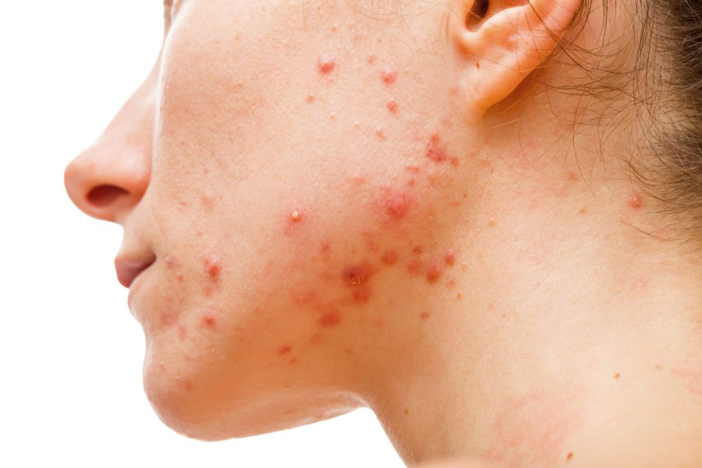 Top 5 Natural Treatments For Hormonal Acne