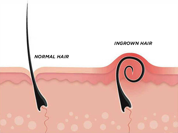 10 fast easy ways to get rid of deep ingrown hair effectively