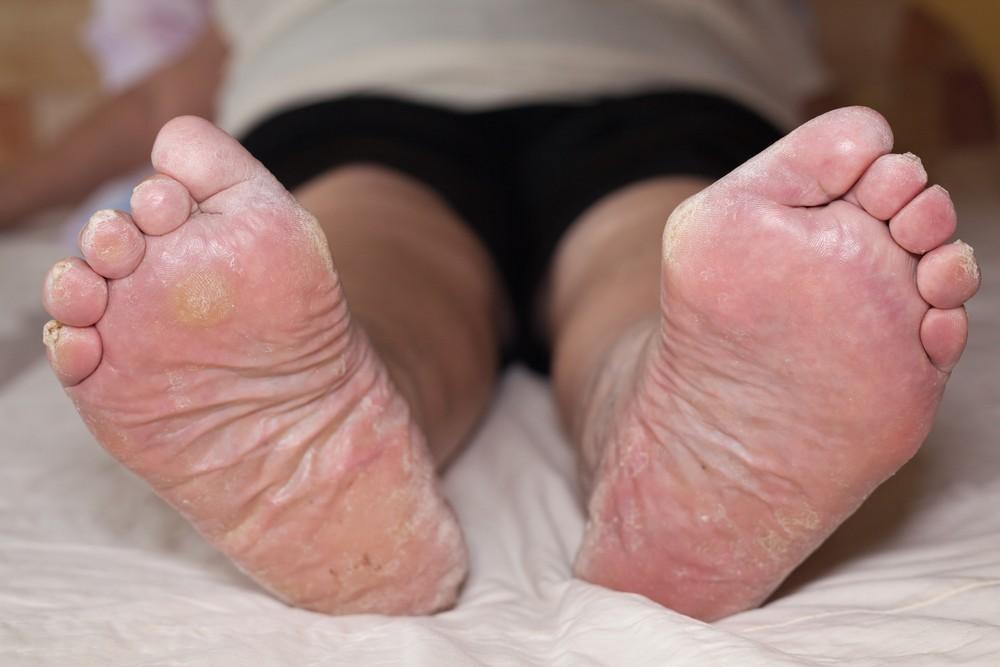 Dry Skin On The Foot \u0026 Toes