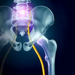 Sciatic pain