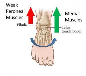 Chronic Ankle Instability (CAI)