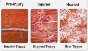 Scar Tissue and the Ways it Can Affect Your Body