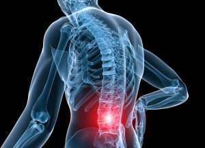 Low Back Pain and/or Nerve Impingement