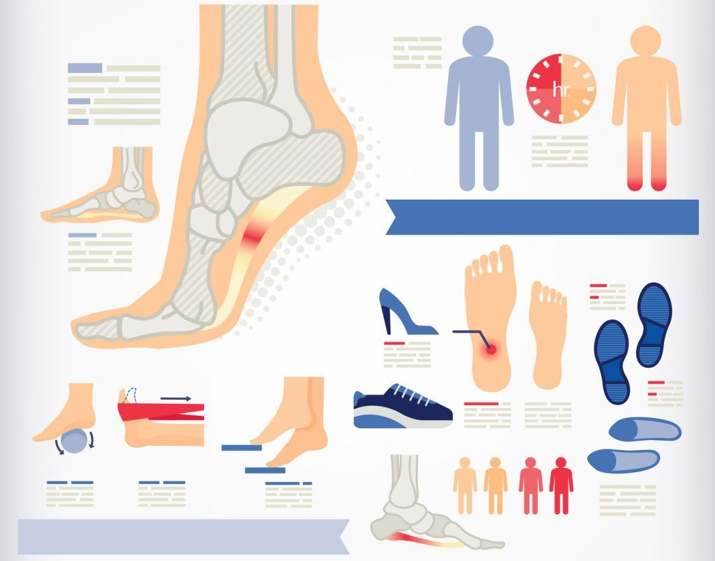 how to treat plantar fasciitis