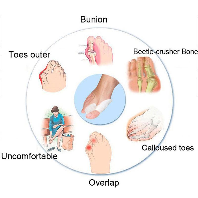 Bunion Splint Corrector7