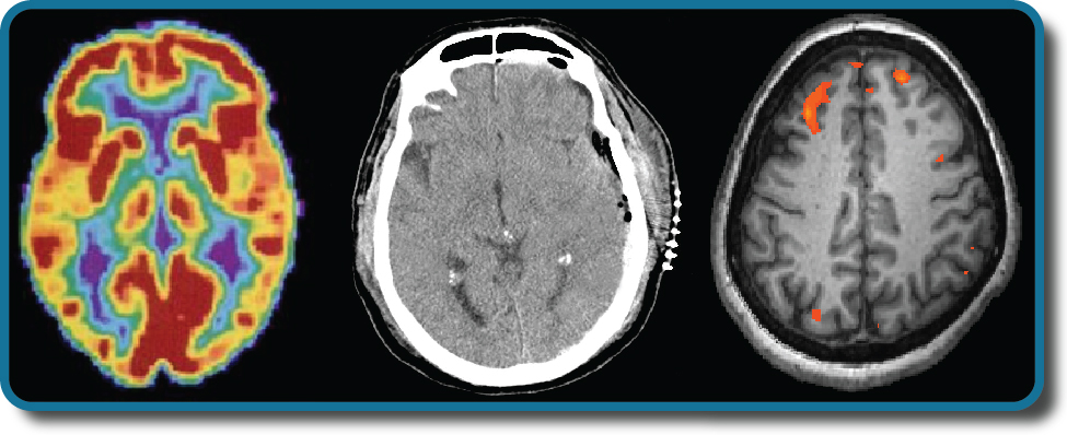 Three brain-imaging scans are shown.