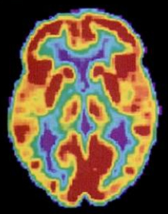 A brain scan shows different parts of the brain in different colors.