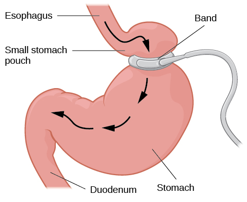 "An illustration depicts a gastric band wrapped around the top portion of a stomach. A bulging area directly above the gastric band is labeled ""Small stomach pouch."" The area directly below the stomach is labeled ""Duodenum."" Down-facing arrows indicate the direction in which digested food travels from the esophagus at the top, down through the stomach, and into the duodenum."