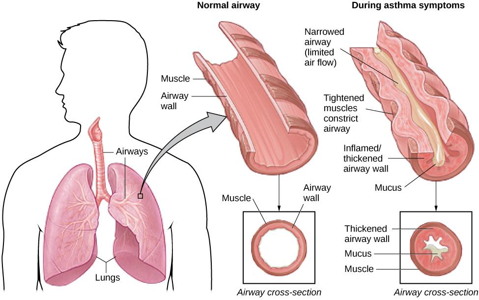 Бронхиальная астма анатомия