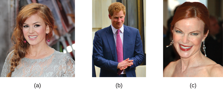 Photograph A shows Isla Fischer. Photograph B shows Prince Harry. Photograph C shows Marcia Cross.