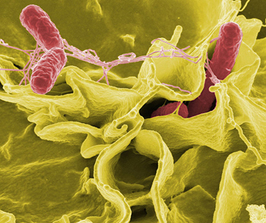 A magnified image of the bacterium Salmonella attacking a human cell. The bacterium is rod shaped and about zero point seven to one point five micrometers in diameter and two to five micrometers in length.