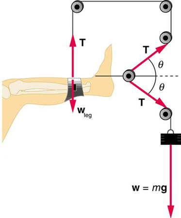 tension diagramme normal  tension  and other examples of forces physics  tension  and other examples of forces
