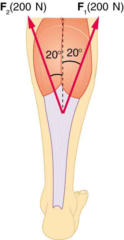 An Achilles tendon is shown in the figure. A vertical dotted line is shown at the middle of the top part. Two vectors inclined at twenty degree each with respect to the vertical dotted line are shown.
