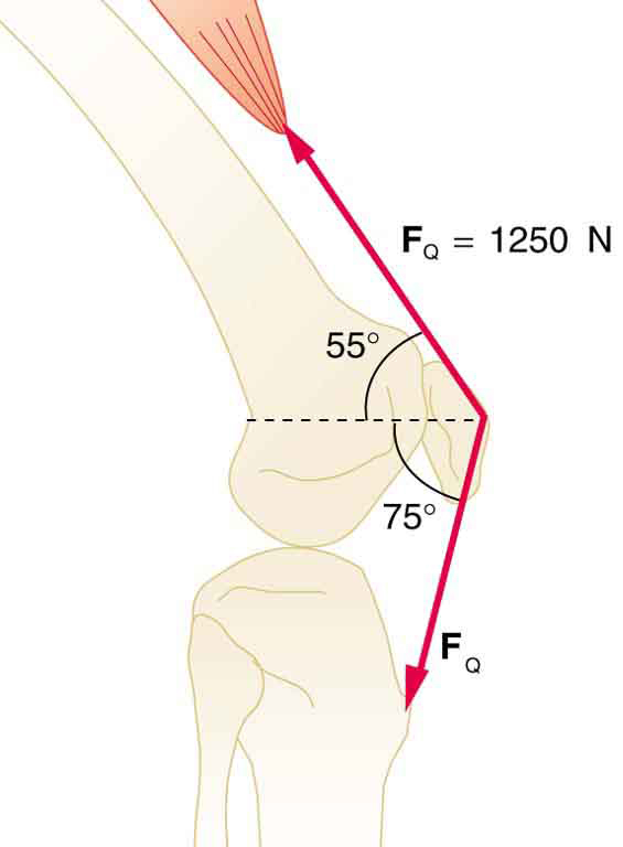Forces and torques in muscles and joints physics the figure shows a side view of the bones of a knee and the quadriceps muscle ccuart Images