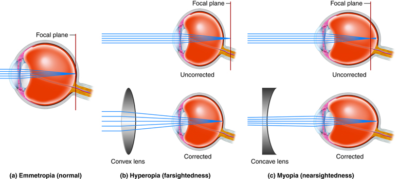 Correcting abnormalities in light refraction in the eye.