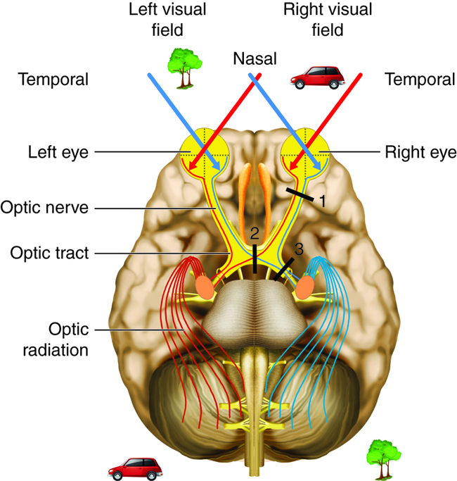 Special Senses Vision Anatomy And Physiology I