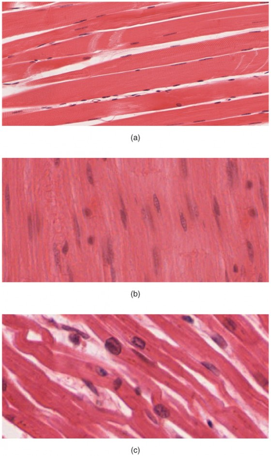 This shows three micrographs, each depicting one of the three muscle tissues. Picture A shows skeletal muscle tissue, which is dense strips of pink tissue that somewhat resemble bacon in appearance. Many small nuclei are dispersed throughout the tissues. The nuclei are flat and elongated, with multiple nuclei clustered into each cell. Picture B shows smooth muscle, which is densely packed and looks similar to skeletal muscle except that each cell only has one oval-shaped nucleus. Picture C shows cardiac muscle. Unlike skeletal and smooth muscle cells, cardiac muscle cells are not densely packed. The cardiac cells are branched, creating a large amount of space between each muscle cell.