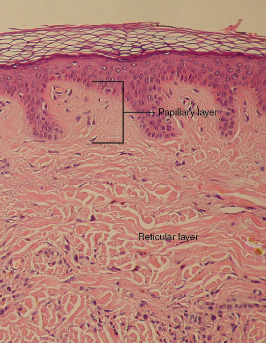 This micrograph shows layers of skin in a cross section. The papillary layer of the dermis extends between the downward fingers of the darkly stained epidermis. The papillary layer appears finer than the reticular layer, consisting of smaller, densely-packed fibers. The reticular layer is three times thicker than the papillary layer and contains larger, thicker fibers. The fibers seem more loosely packed than those of the papillary layer, with some separated by empty spaces. Both layers of the dermis contain cells with darkly stained nuclei.