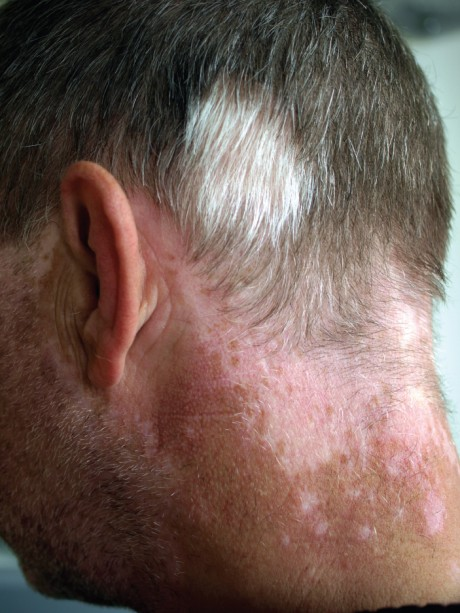 This photo shows the back of a man's neck. There is a large, discolored patch of skin at the base of his hairline. The discolored area extends over the ears onto the cheeks, toward the front of the face. The man's head and facial hair are mostly gray, but white patches of hair are seen above the discolored skin.