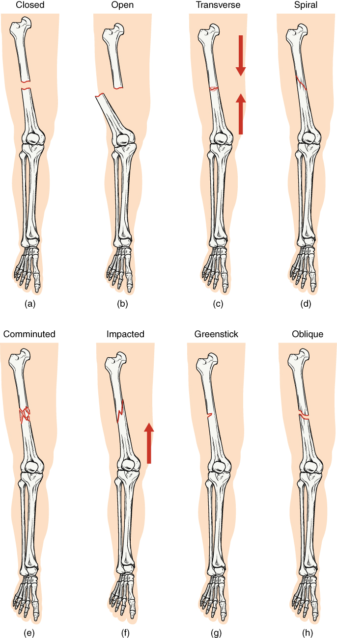Fractures Bone Repair Anatomy And Physiology