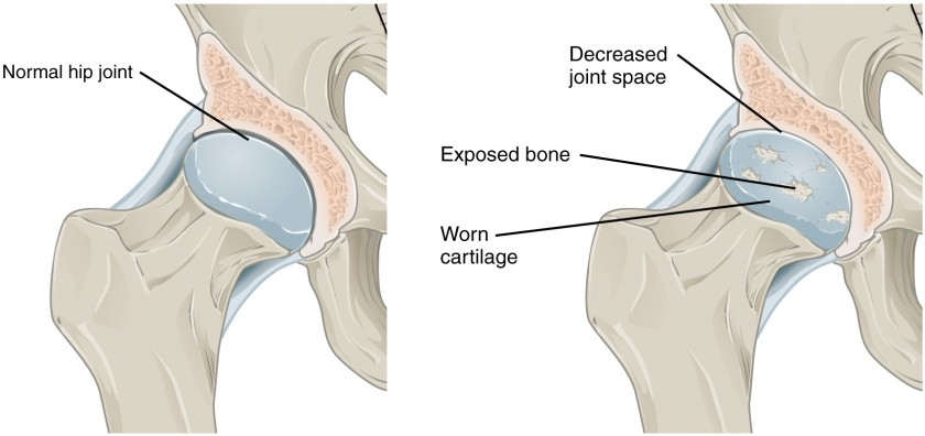 The top panel in this figure shows a normal hip joint, and the bottom panel shows a hip joint with osteoarthritis.