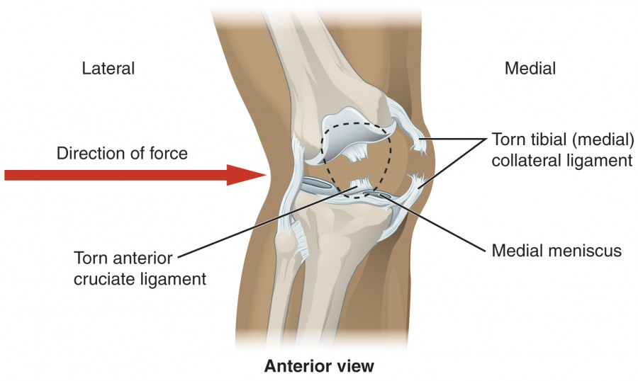 This image shows an injured knee joint. A red arrow points from left to right showing the direction of force that caused the injury.