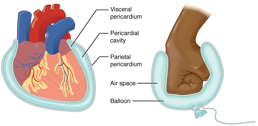 This diagram shows the pericardium on the left next to an analogy of a hand punching a balloon on the right. The pericardium is a two-layered sac that surrounds the entire heart except where the blood vessels emerge on the heart's superior side. The pericardium has two layers because it folds over itself in the shape of the letter U. The inner layer that borders the heart is the visceral pericardium while the outer layer is the parietal pericardium. The space between the two layers is called the pericardial cavity. The heart sits in the cavity much like a fist punching into a balloon. The balloon surrounds the lower part of the fist with a two-layered sac, with the top of the balloon, where it contacts the fist, being analogous to the visceral pericardium. The bottom of the balloon, where it is tied off, is analogous to the parietal pericardium. The air within the balloon is analogous to the pericardial cavity.