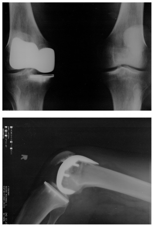 Two x rays of an artificial knee replacement are shown.