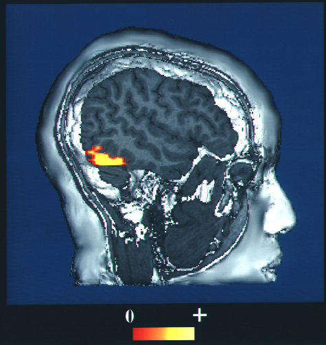 An f M R I scan of a human head with energy consumption in the vision center shown by a bright spot. This brightness indicates the energy consumption.