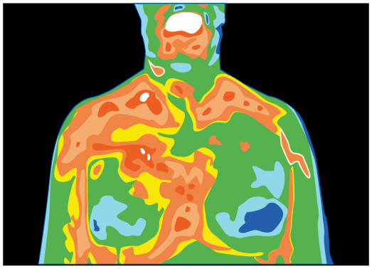 A thermograph of the chest area of a patient is shown. There are different colors showing different thermal regions.