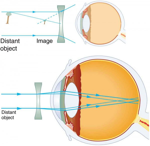 a229263b1b Two illustrations of cross-sectional view of an eye are shown. In the first