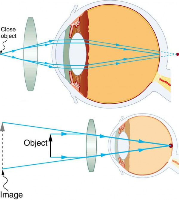 Vision Correction | Physics