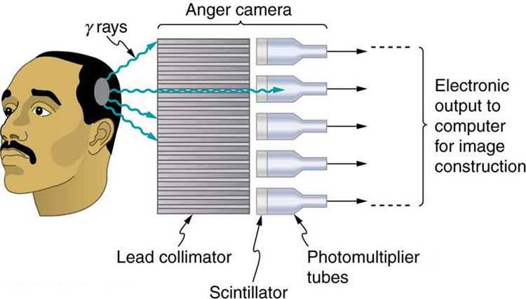 The image shows the head of a man scanned by an Anger camera. The camera consists of a lead collimator and array of detectors. Gamma rays emerging from the man's head pass through the lead collimator and produce light flashes in the scintillators. The photomultiplier tubes convert the light output to electrical signals for computer image generation.