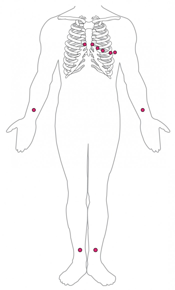 cardiac muscle and electrical activity anatomy and physiology ii Heart EKG Test this diagram shows the points where electrodes are placed on the body for an ecg