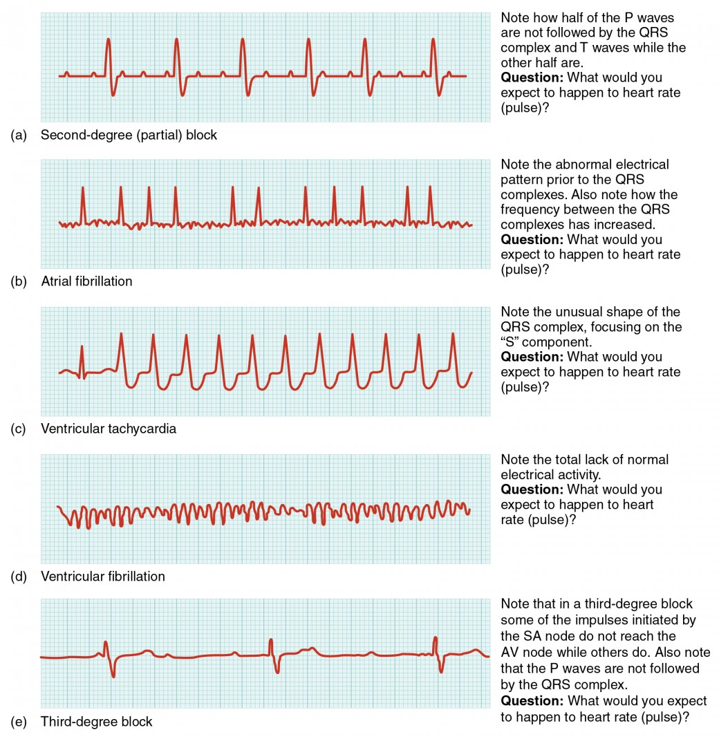 In this image the QT cycle for different heart conditions are shown. From top to bottom, the arrhythmias shown are second-degree partial block, atrial fibrillation, ventricular tachycardia, ventricular fibrillation and third degree block.