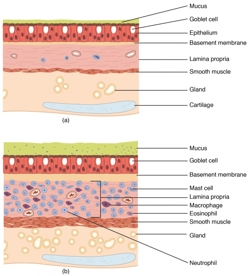 The top panel of this figure shows normal lung tissue, and the bottom panel shows lung tissue inflamed by asthma.