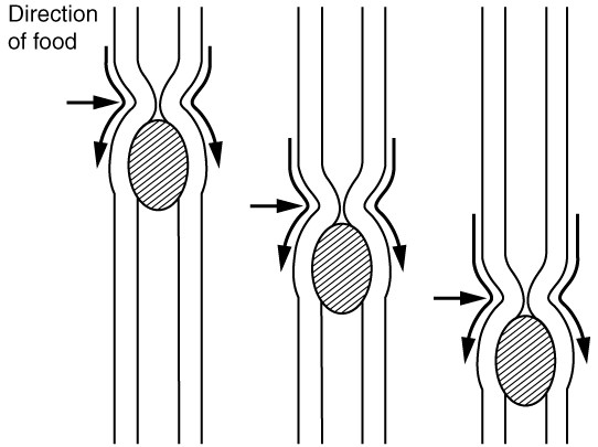 This image shows the peristaltic movement of food. In the left image, the food bolus is towards the top of the esophagus and arrows pointing downward show the direction of movement of the peristaltic wave. In the center image, the food bolus and the wave movement are closer to the center of the esophagus and in the right image, the bolus and the wave are close to the bottom end of the esophagus.