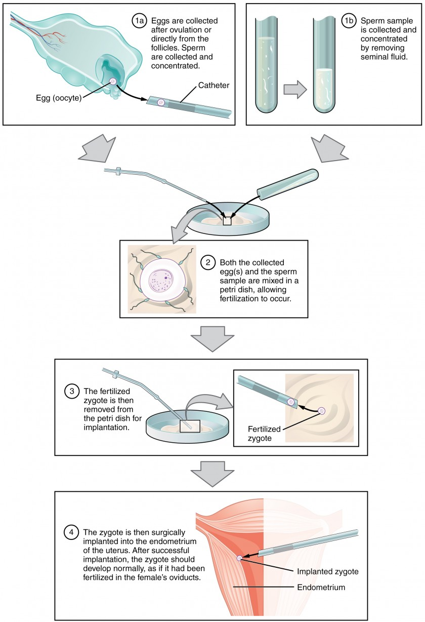 This multi-part figure shows the different steps in in vitro fertilization. The top panel shows how the oocytes and the sperm are collected and prepared. The next panel shows the sperm and oocytes being mixed in a petri dish. The panel below that shows the fertilized zygote being prepared for implantation. The last panel shows the fertilized zygote being implanted into the uterus.