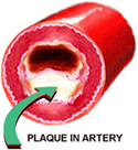 Side view of artery with plaque