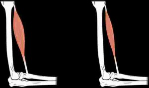This image shows muscle atrophy. The left panel shows normal muscle and the right panel shows atrophied muscle.