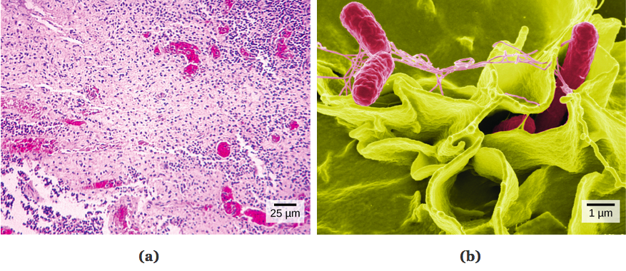 Part a: Salmonella through a light microscope appear as tiny purple dots. Part b: In this scanning electron micrograph, bacteria appear as three-dimensional ovals. The human cells are much larger with a complex, folded appearance. Some of the bacteria lie on the surface of the human cells, and some are squeezed between them.