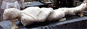 A present-day mummy
