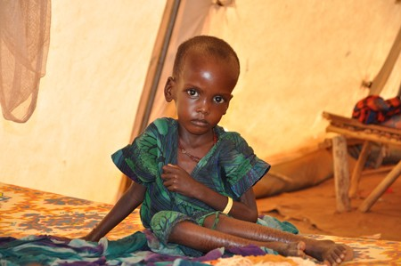 A malnourished child is shown here.