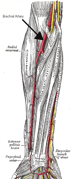 The image shows some of the muscles and arteries of the right forearm and hand, including the superficial palmar arch (titled Superficial Volar Arch in this picture, which is an alternative term) and the common palmar digital arteries branching off of it. The unlabelled yellow lines are nerves. Palmar aspect with the proximal part (elbow) at the top and the distal part (hand) at the bottom.