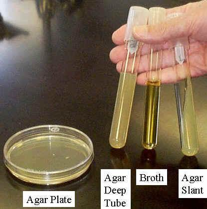 Photograph of the four common culture media: agar plate, agar deep tube, broth, and agar slant.