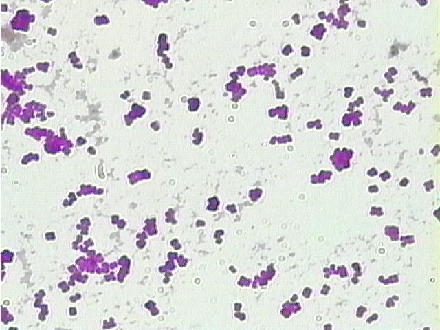 Cocci bacteria at 400 times magnification