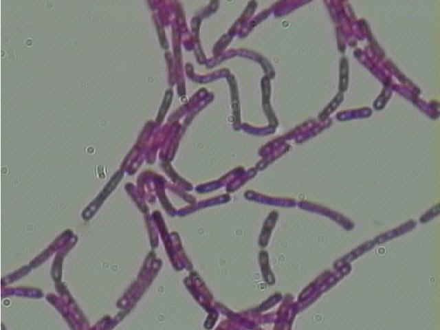 Bacilli bacteria at 1000 times magnification.