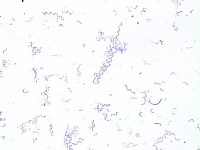Spirilla bacteria at 400 times magnification.